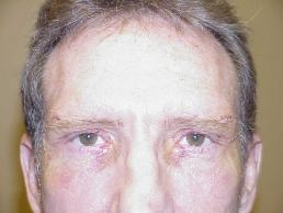 direct-brow-lift-with-upper-lid-lift-nashville