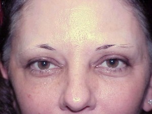 Image result for DISAPPEARING EYEBROWS