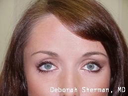 botoxdysport-between-the-brows-nashville