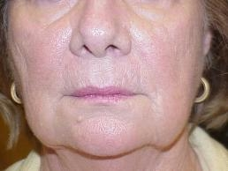 facial-fillers-nashville