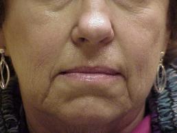 facial-fillers-nashville