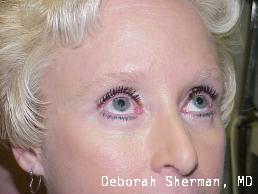 lower-eyelid-lift-nashville