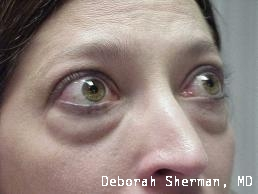 lower-eyelid-lift-nashville