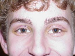 eyelid-ptosis-repair-nashville