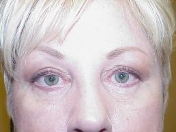 upper-and-lower-eyelid-lift-nashville