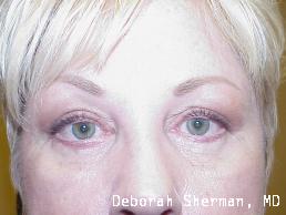 upper-and-lower-eyelid-lift-nashville