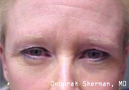 upper-eyelid-lift-nashville