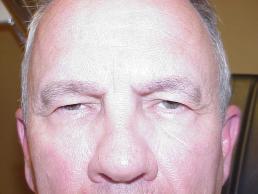 upper-eyelid-lift-nashville