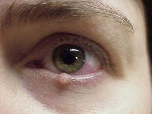 benign lesion